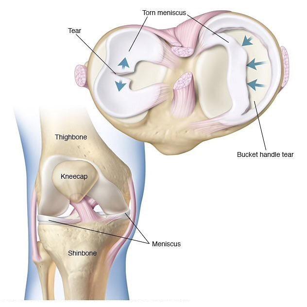Quiroprácticos especializados para el alivio del dolor de rodilla en Chicago